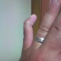 小指にアクシデント 1
