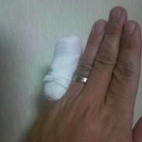 小指にアクシデント 2